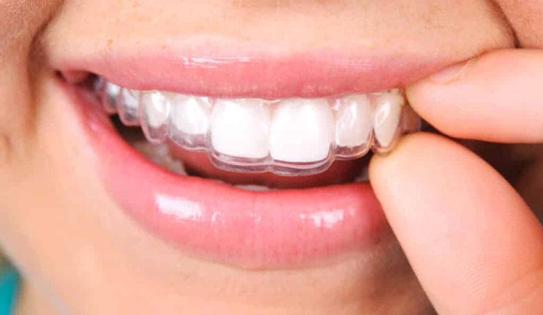 Invisalign folije za ispravljanje zuba
